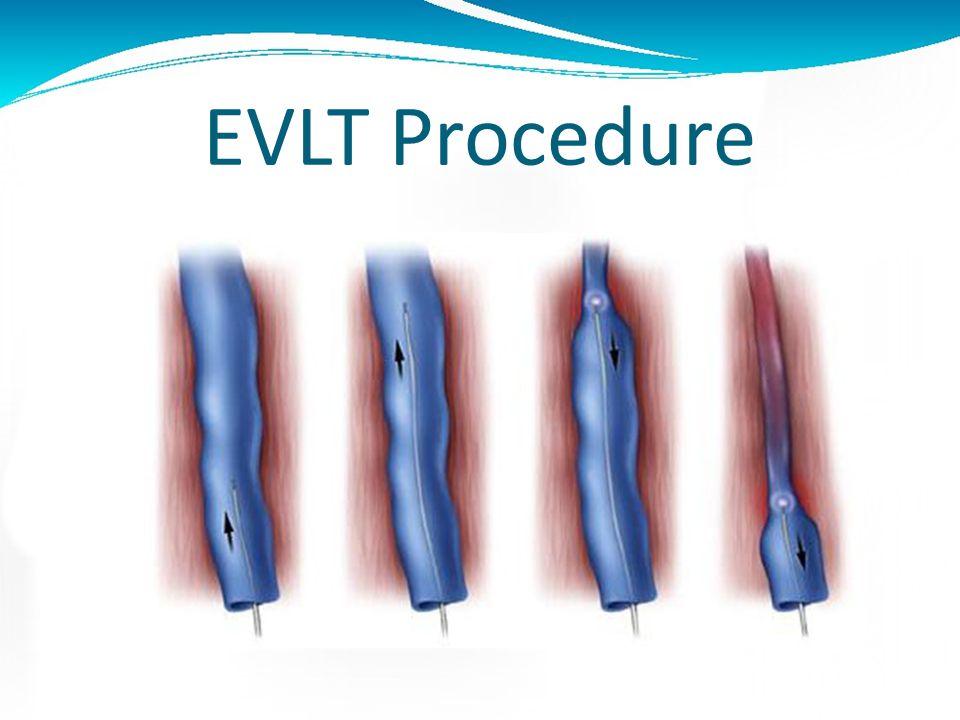 EVLT Procedure