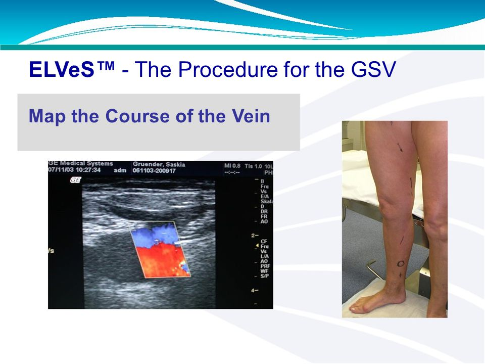 ELVeS™ - The Procedure for the GSV