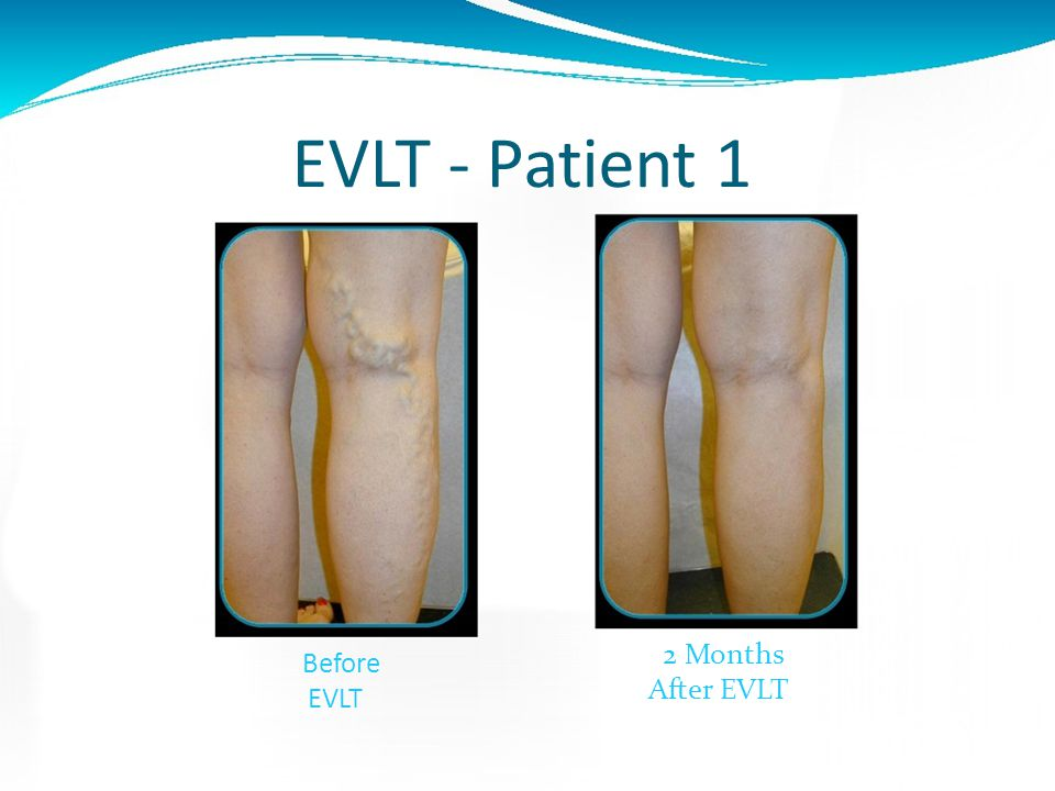 EVLT - Patient 1 2 Months Before EVLT After EVLT