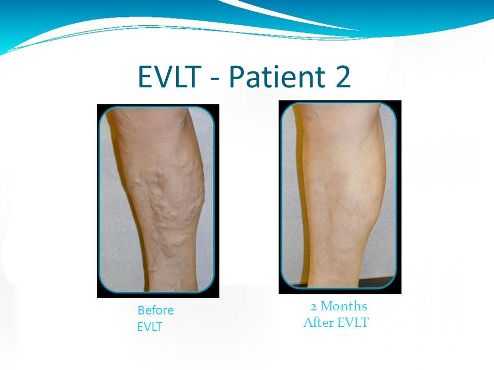 EVLT - Patient 2 2 Months Before EVLT After EVLT
