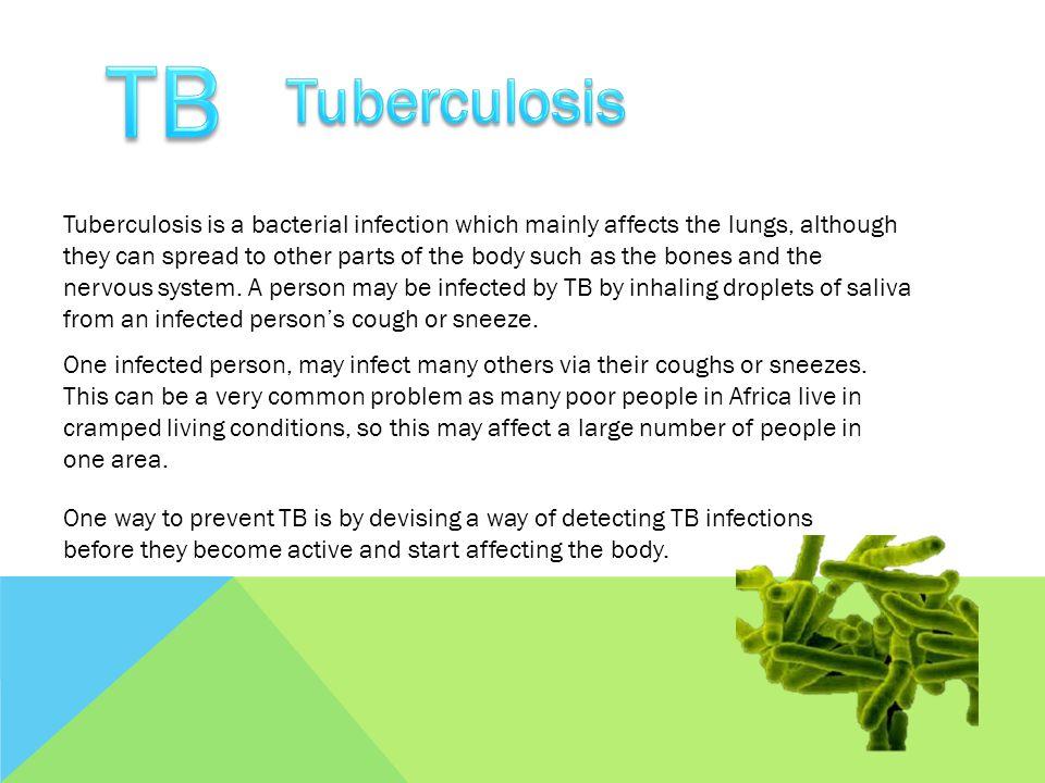 TB Tuberculosis.