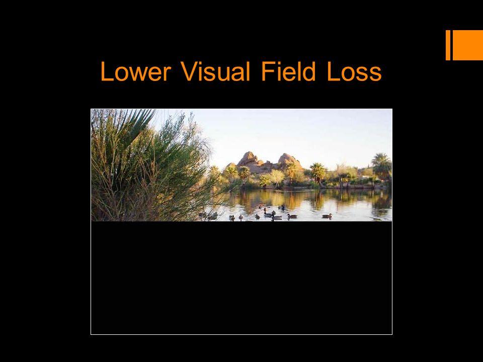 Lower Visual Field Loss