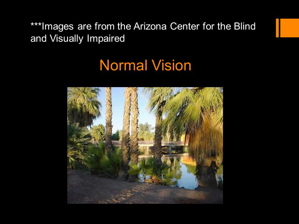 ***Images are from the Arizona Center for the Blind and Visually Impaired Normal Vision
