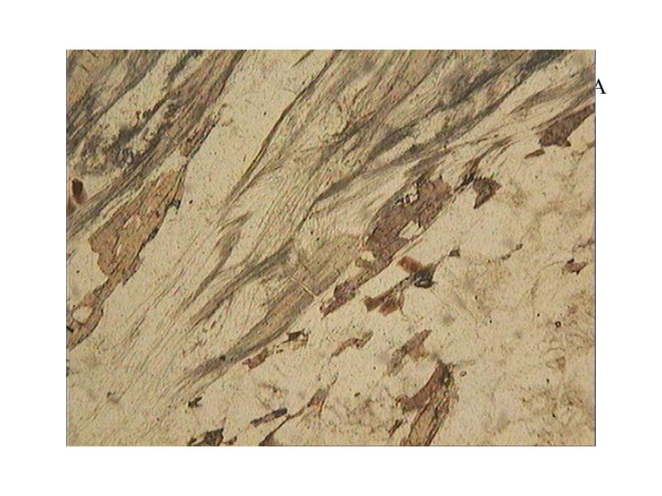 Gneiss sillimanite LPNA