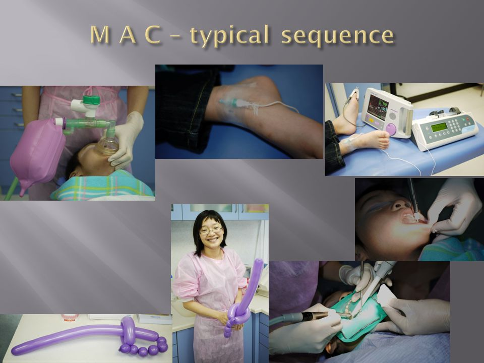 M A C – typical sequence