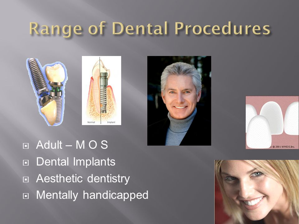 Range of Dental Procedures
