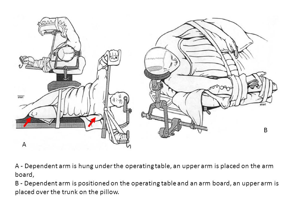B A. A - Dependent arm is hung under the operating table, an upper arm is placed on the arm board,