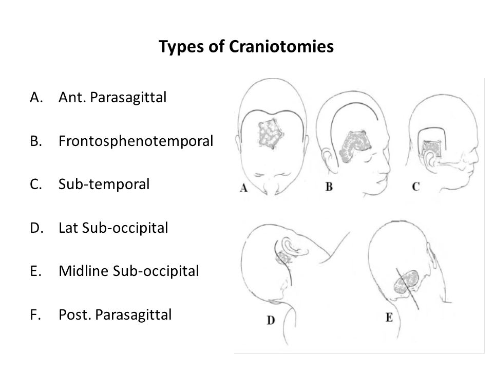 Types of Craniotomies Ant. Parasagittal Frontosphenotemporal