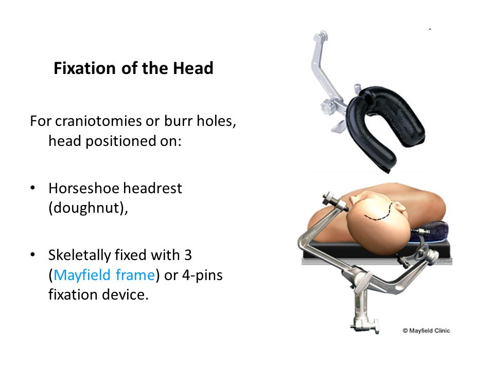 Fixation of the Head For craniotomies or burr holes, head positioned on: Horseshoe headrest (doughnut),