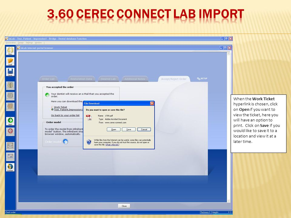3.60 CEREC Connect Lab Import