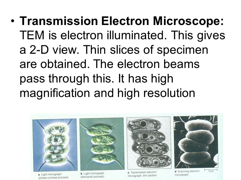 Transmission Electron Microscope: TEM is electron illuminated