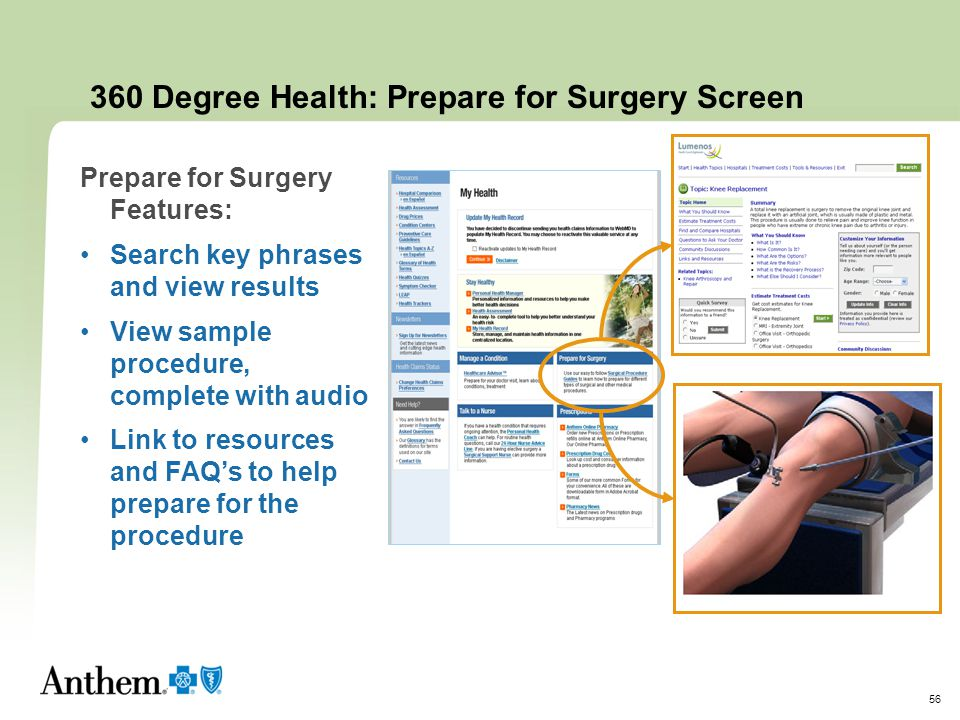 360 Degree Health: Prepare for Surgery Screen