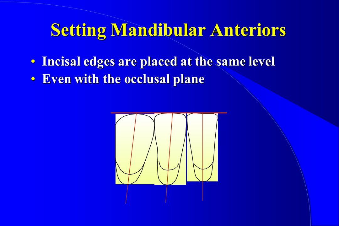 Setting Mandibular Anteriors