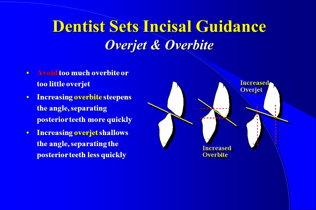 Dentist Sets Incisal Guidance Overjet & Overbite