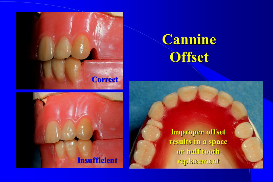 Improper offset results in a space or half tooth replacement