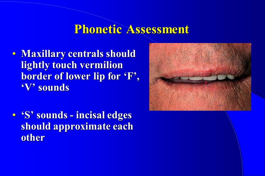 Phonetic Assessment Maxillary centrals should lightly touch vermilion border of lower lip for 'F', 'V' sounds.