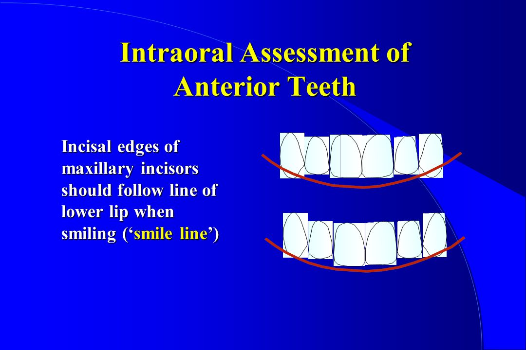 Intraoral Assessment of Anterior Teeth