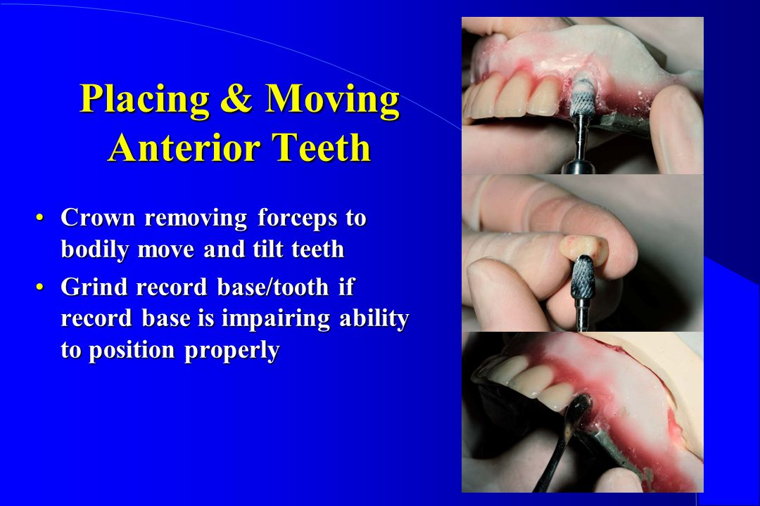 Placing & Moving Anterior Teeth