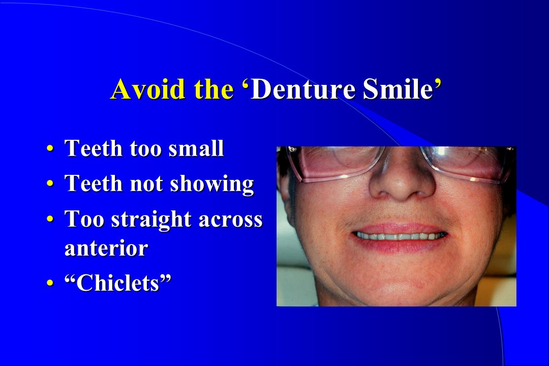 Avoid the 'Denture Smile'