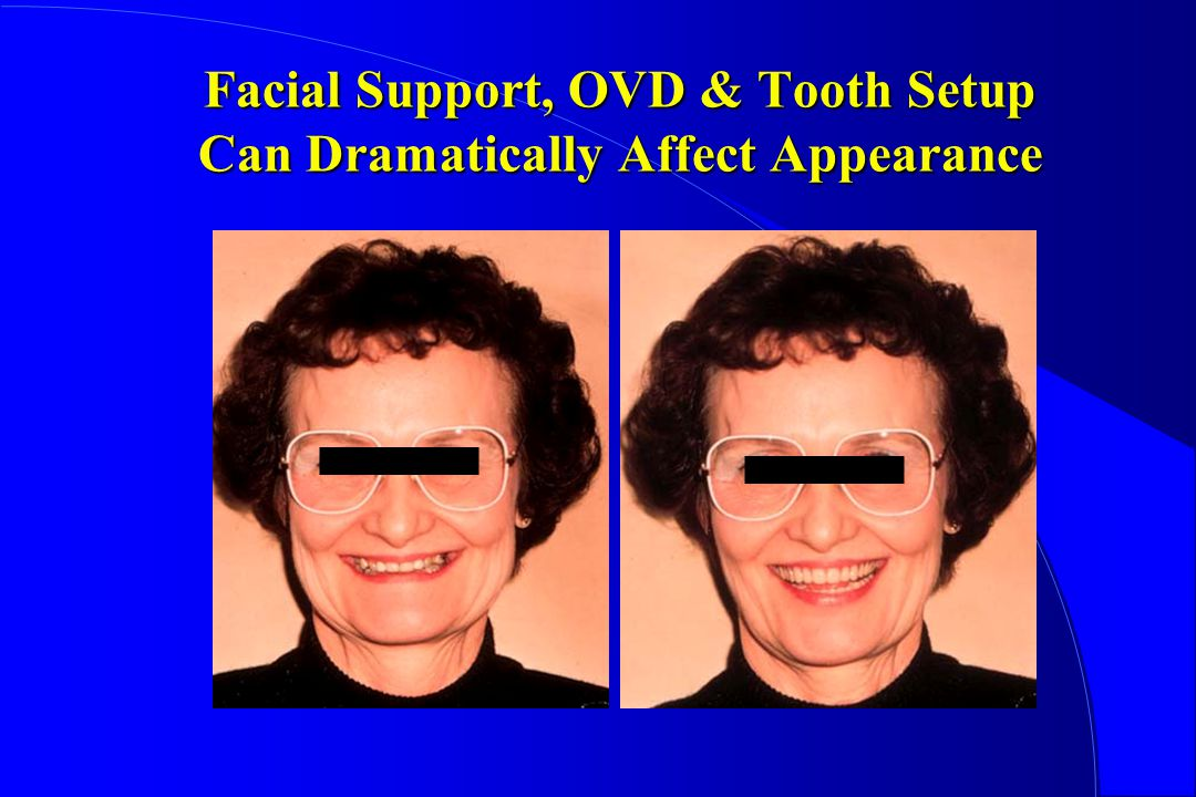 Facial Support, OVD & Tooth Setup Can Dramatically Affect Appearance
