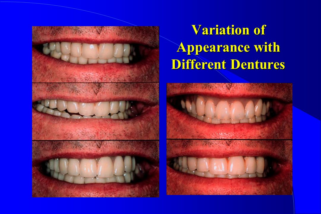 Variation of Appearance with Different Dentures