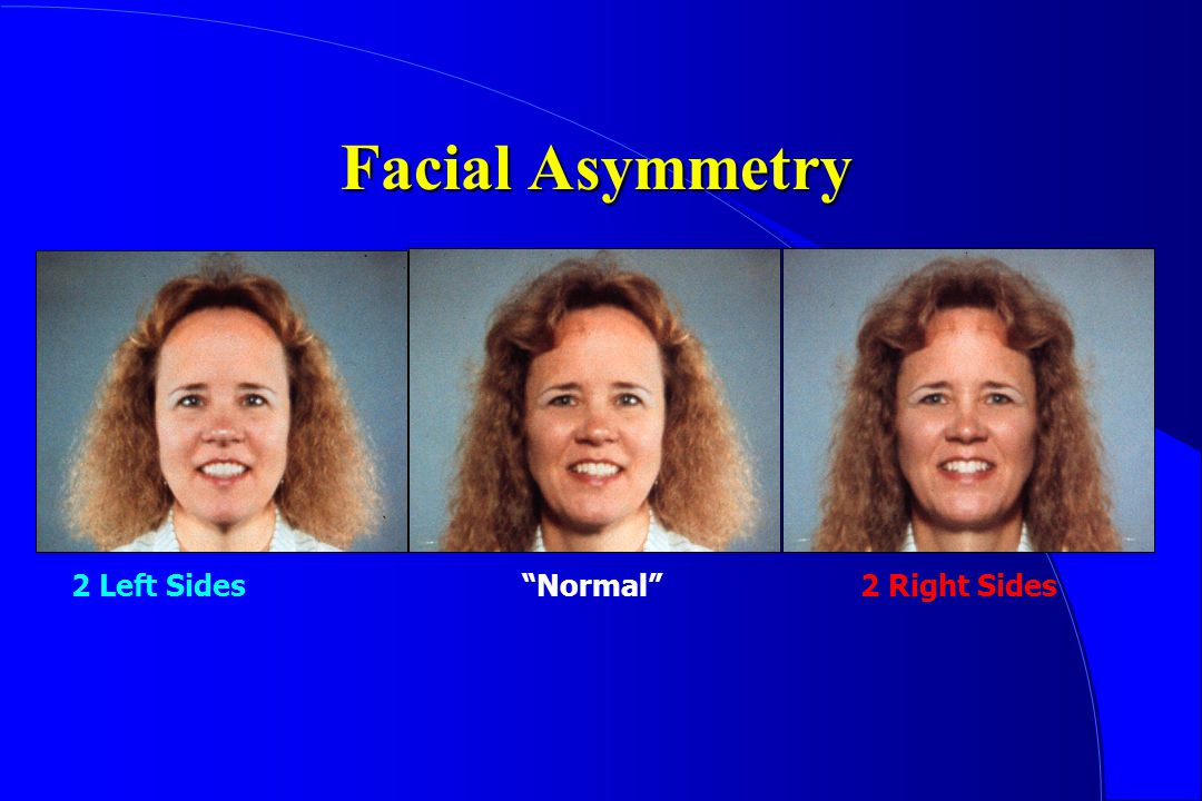 Facial Asymmetry 2 Left Sides Normal 2 Right Sides