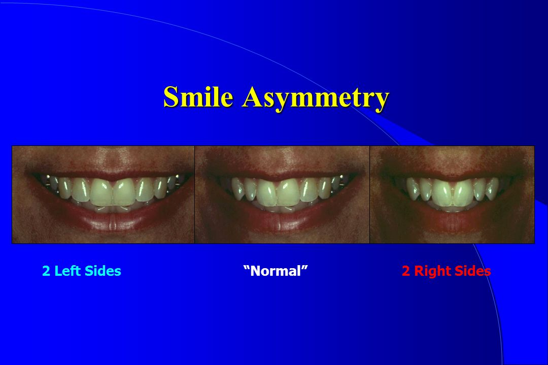 Smile Asymmetry 2 Left Sides Normal 2 Right Sides