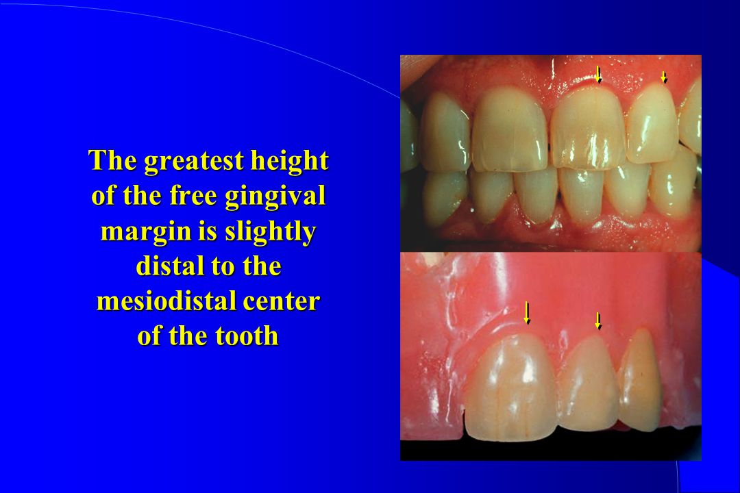 The greatest height of the free gingival margin is slightly distal to the mesiodistal center of the tooth