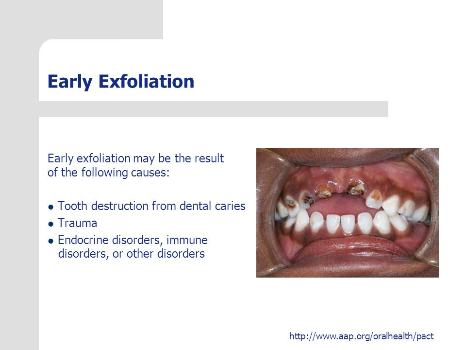 Early Exfoliation Early exfoliation may be the result of the following causes: Tooth destruction from dental caries.