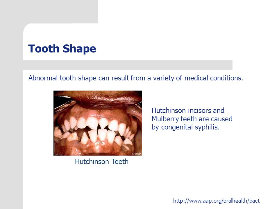 Tooth Shape Abnormal tooth shape can result from a variety of medical conditions. Hutchinson incisors and.