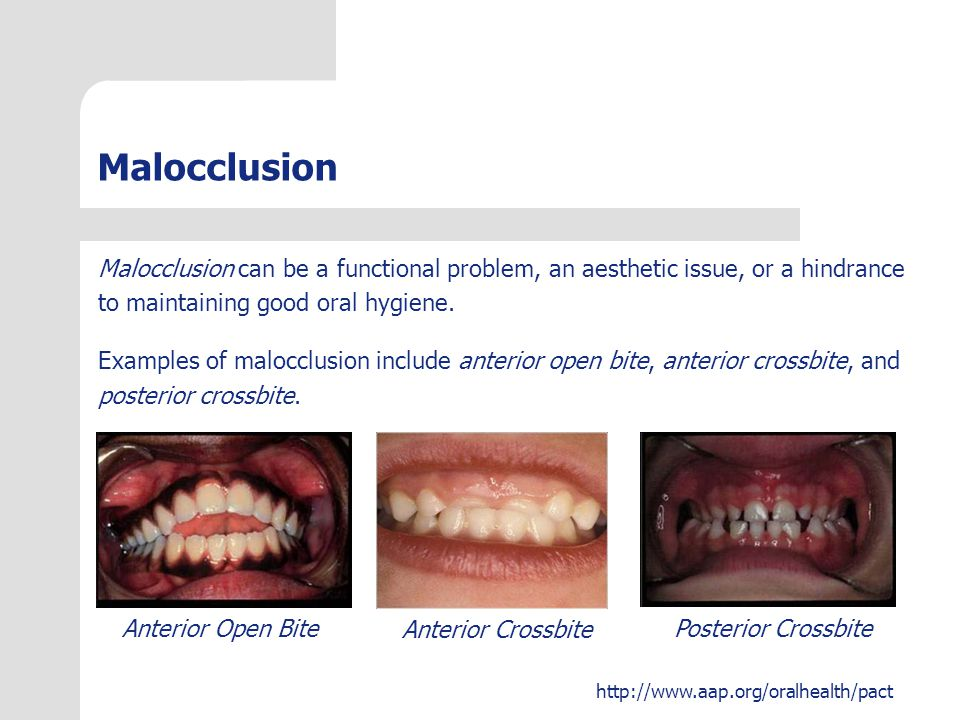 Malocclusion Malocclusion can be a functional problem, an aesthetic issue, or a hindrance. to maintaining good oral hygiene.