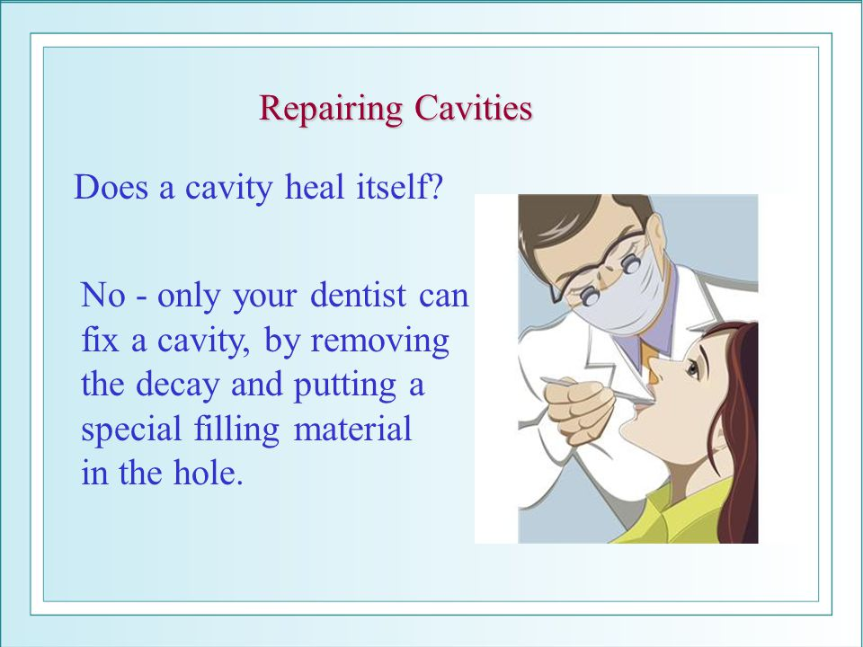Repairing Cavities Does a cavity heal itself No - only your dentist can. fix a cavity, by removing.