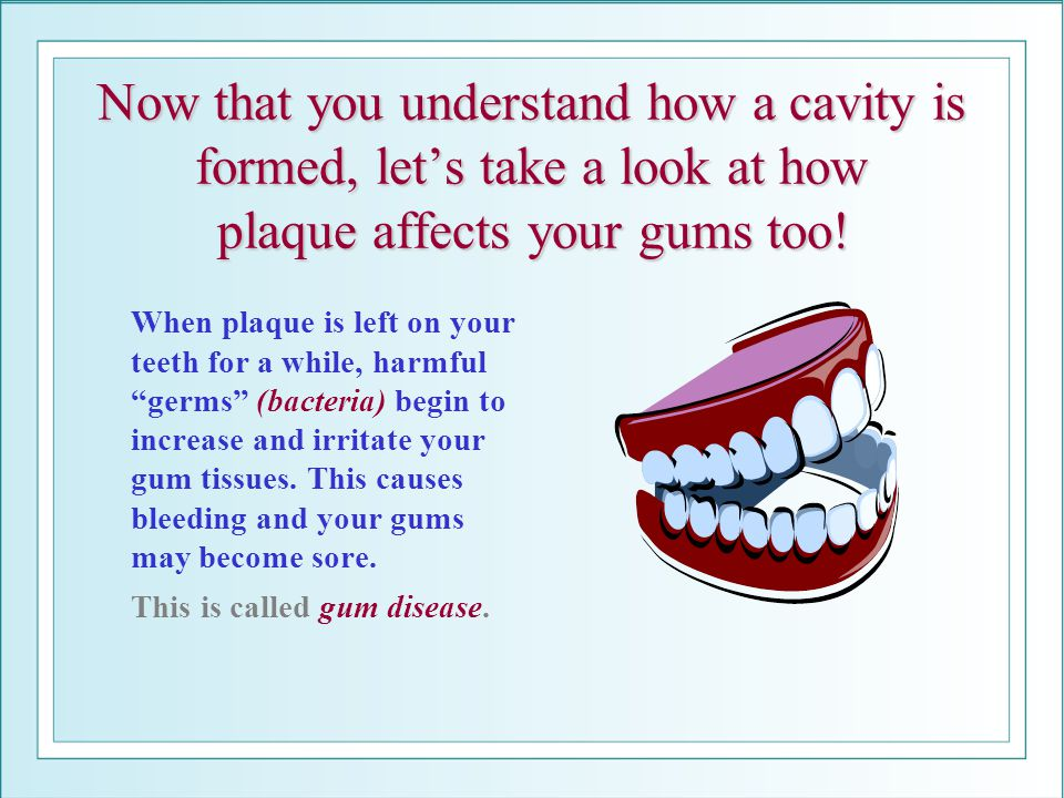 Now that you understand how a cavity is formed, let's take a look at how plaque affects your gums too!