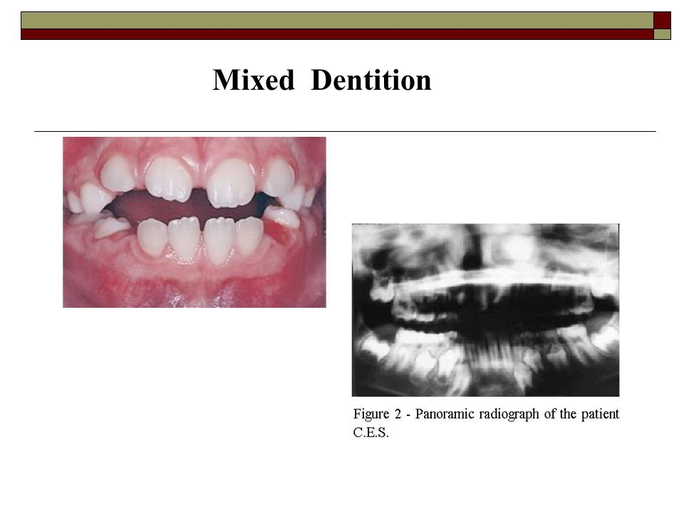 Mixed Dentition