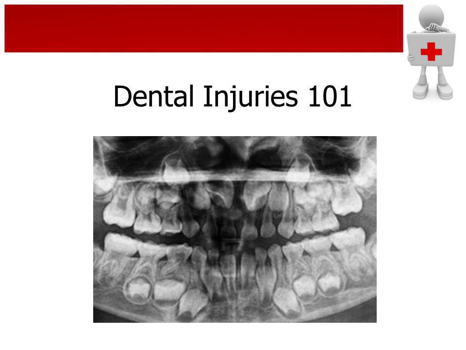 Dental Injuries 101 Panorex of mixed dentition