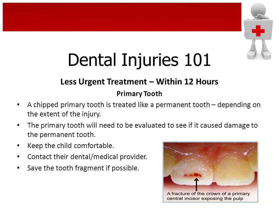 Less Urgent Treatment – Within 12 Hours