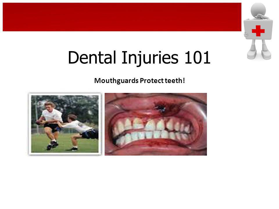 Mouthguards Protect teeth!