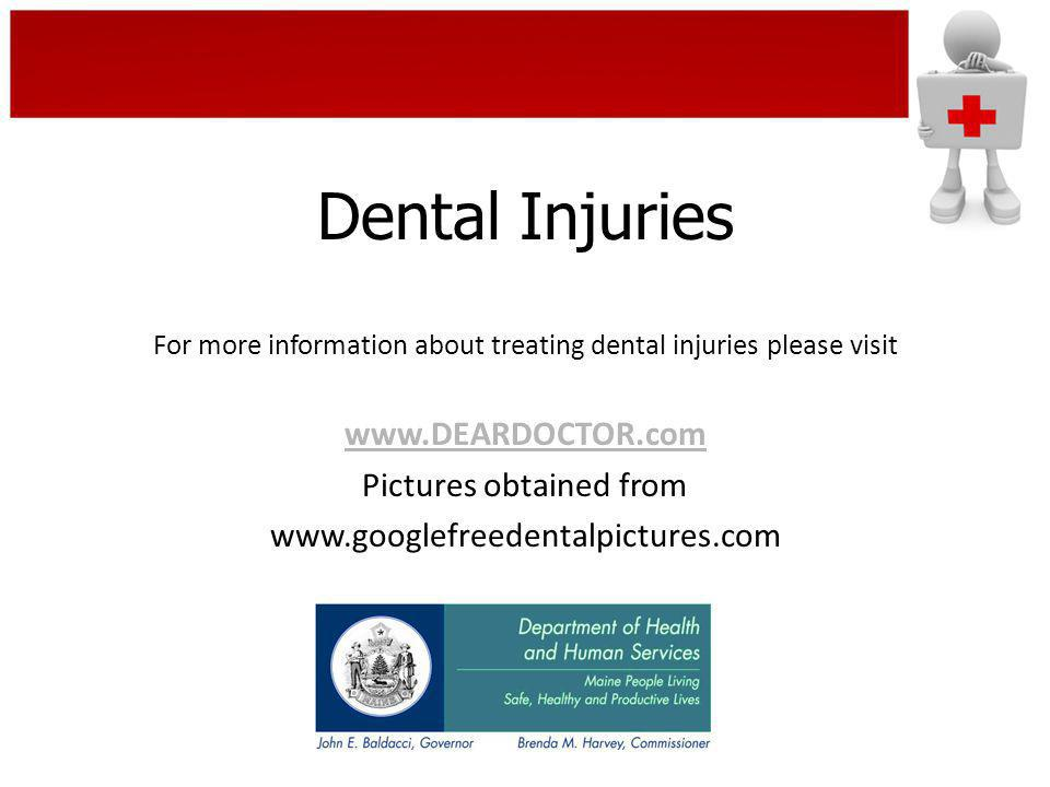 Dental Injuries www.DEARDOCTOR.com Pictures obtained from