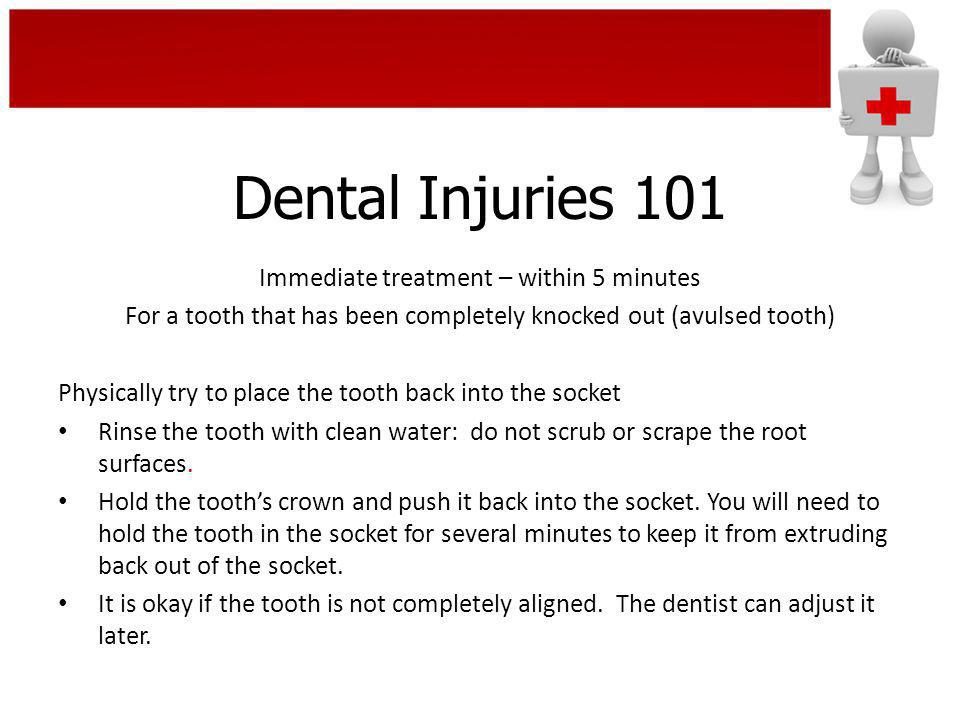Dental Injuries 101 Immediate treatment – within 5 minutes