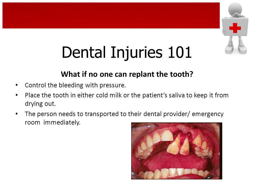 What if no one can replant the tooth