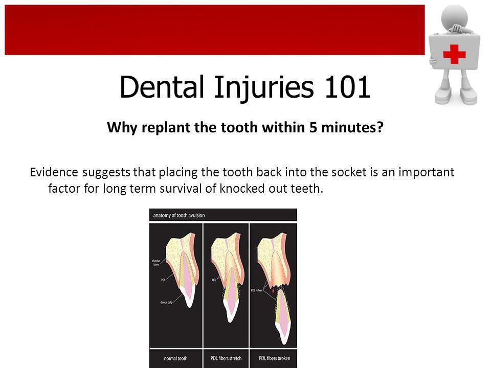 Why replant the tooth within 5 minutes