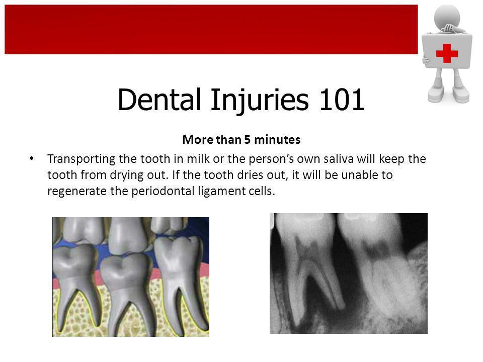 Dental Injuries 101 More than 5 minutes