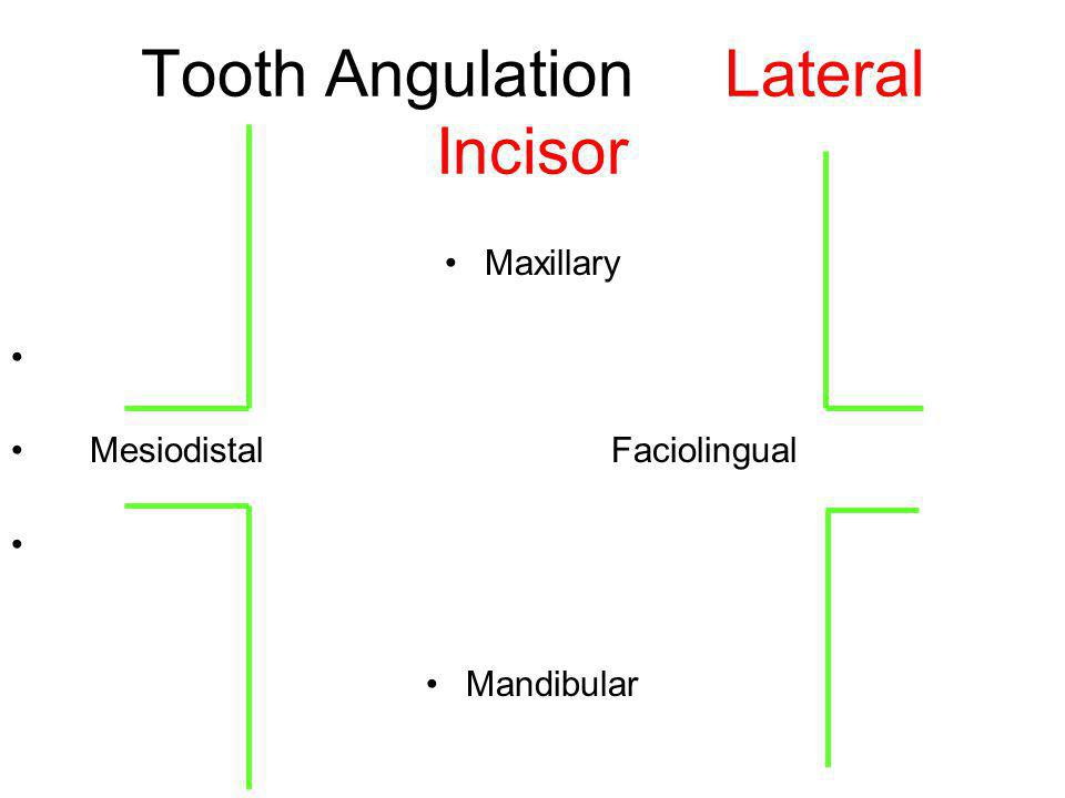 Tooth Angulation Lateral Incisor