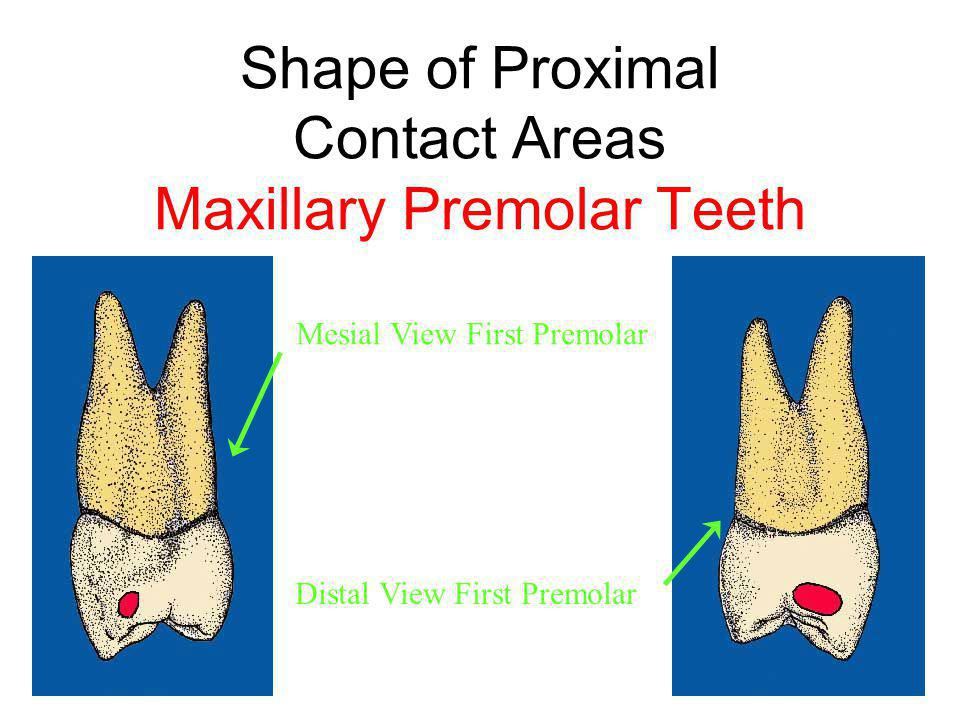 Shape of Proximal Contact Areas Maxillary Premolar Teeth