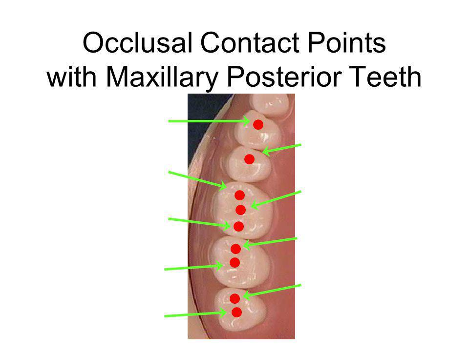 Occlusal Contact Points with Maxillary Posterior Teeth