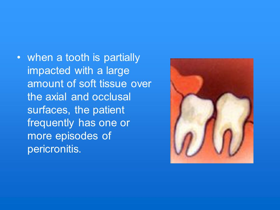 when a tooth is partially impacted with a large amount of soft tissue over the axial and occlusal surfaces, the patient frequently has one or more episodes of pericronitis.