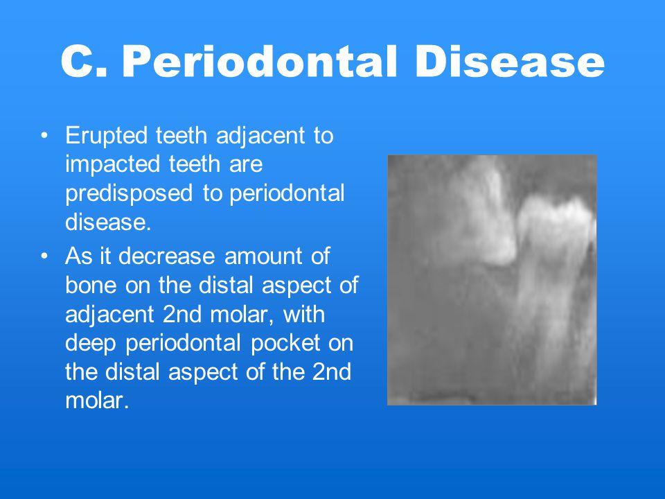 Periodontal Disease Erupted teeth adjacent to impacted teeth are predisposed to periodontal disease.