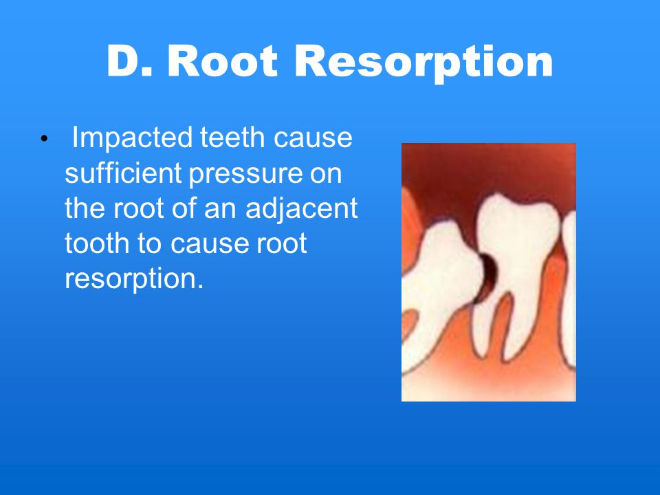 Root Resorption Impacted teeth cause sufficient pressure on the root of an adjacent tooth to cause root resorption.