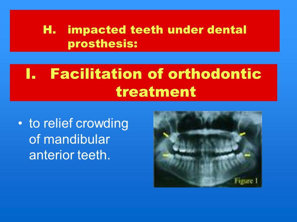 Facilitation of orthodontic treatment