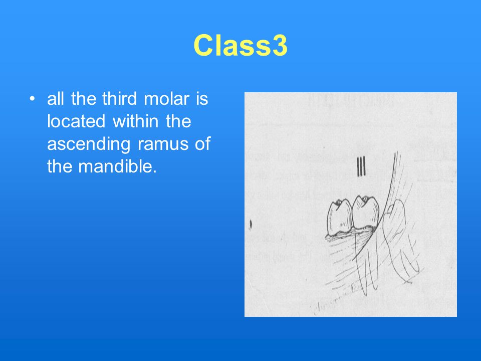 Class3 all the third molar is located within the ascending ramus of the mandible.